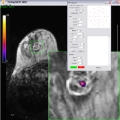 focused ultrasound based thermal ablation targeting tool based on MR images