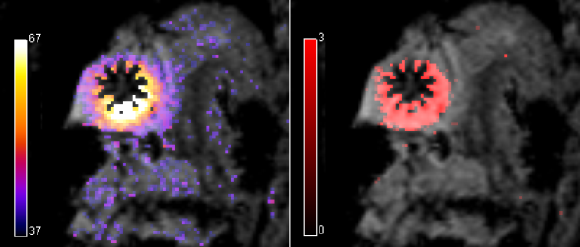 temperature and thermal dose maps overlaid on anatomic images during an RF ablation procedure