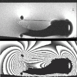 Metal artifacts due to susceptibility differences shown on MR modulus and phase images