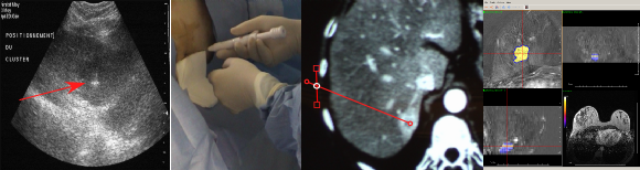 Targeting of a thermal ablation procedure with US, CT and MRI