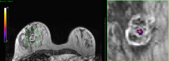 Test shot detection with MR temperature image to ensure adequate targeting of the focused ultrasound beam